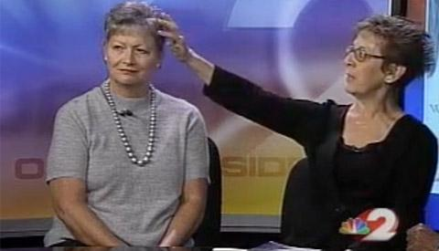 Breaking the Silence on Women's Hair Loss, Candace Hoffmann