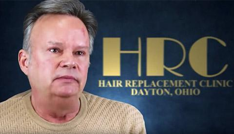HRC Dayton Men's Hair Transplants